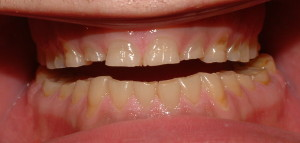 Bruxism related to daily stress